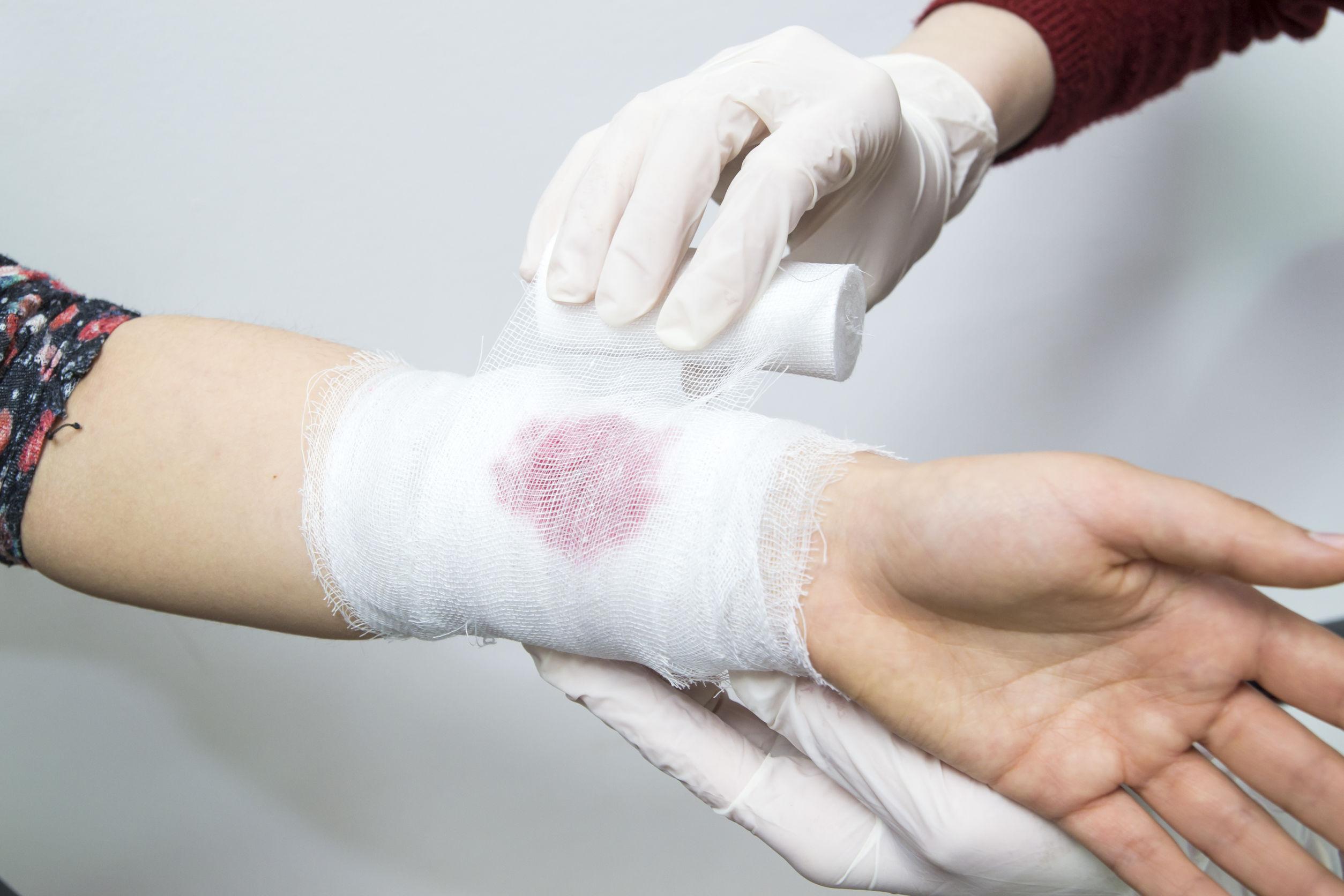 Bandaging a bleeding injury on the forearm using a white bandage